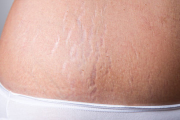 How I Learned To Accept My Stretch Marks