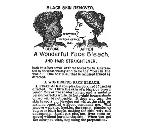Racist Whitening Creams